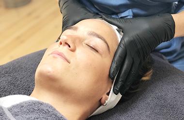 Medicinsk Peeling